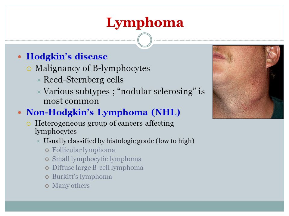 Lymphoma Hodgkin's disease Malignancy of B-lymphocytes