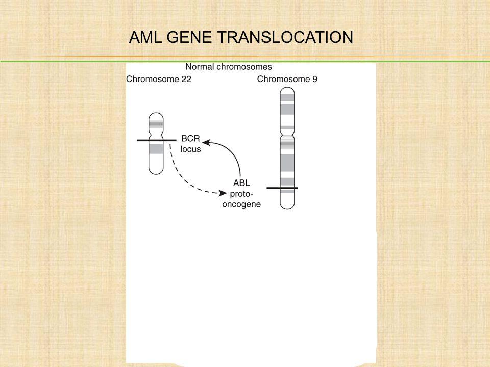 AML GENE TRANSLOCATION