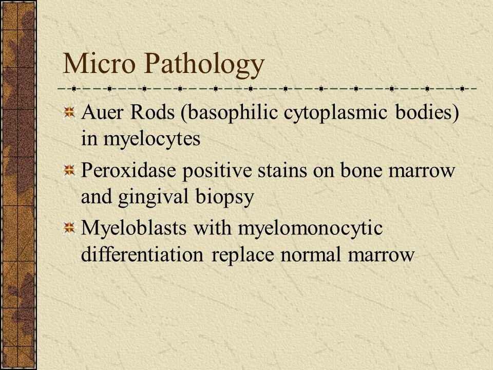 Micro Pathology Auer Rods (basophilic cytoplasmic bodies) in myelocytes. Peroxidase positive stains on bone marrow and gingival biopsy.