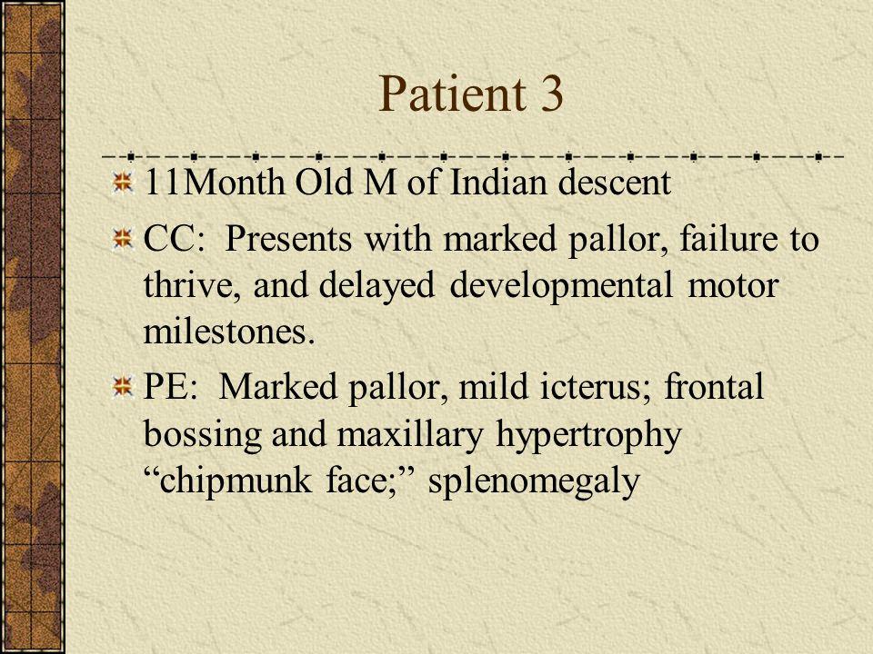 Patient 3 11Month Old M of Indian descent