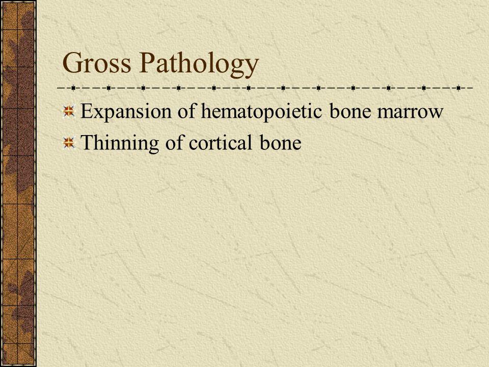 Gross Pathology Expansion of hematopoietic bone marrow