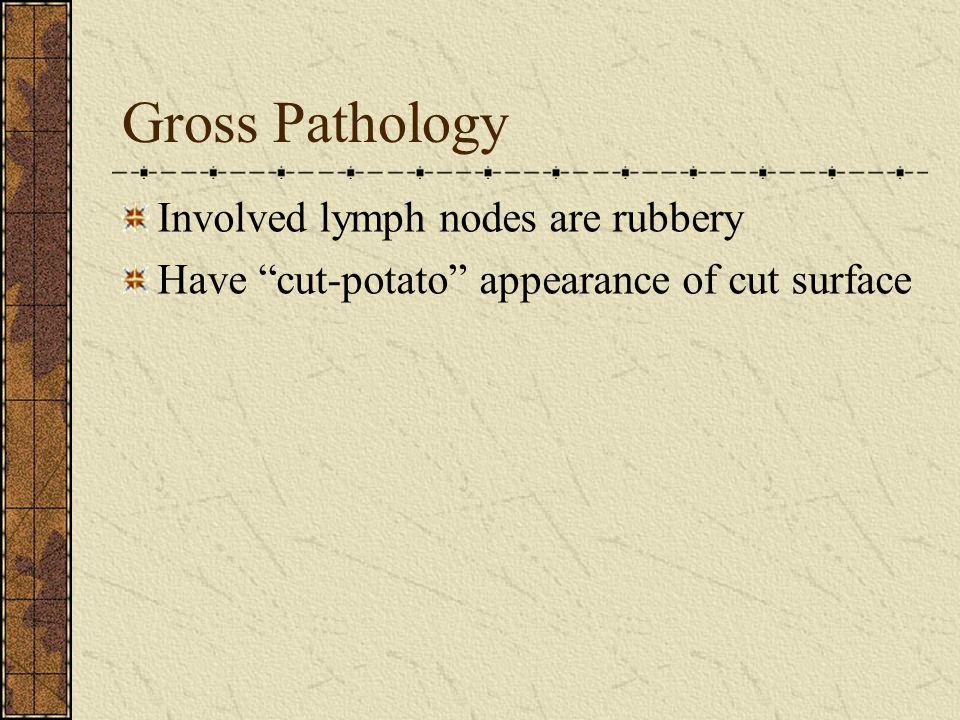 Gross Pathology Involved lymph nodes are rubbery