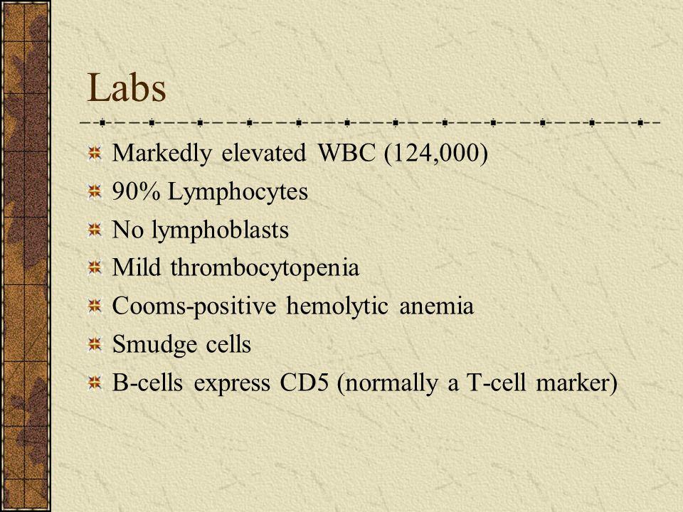 Labs Markedly elevated WBC (124,000) 90% Lymphocytes No lymphoblasts
