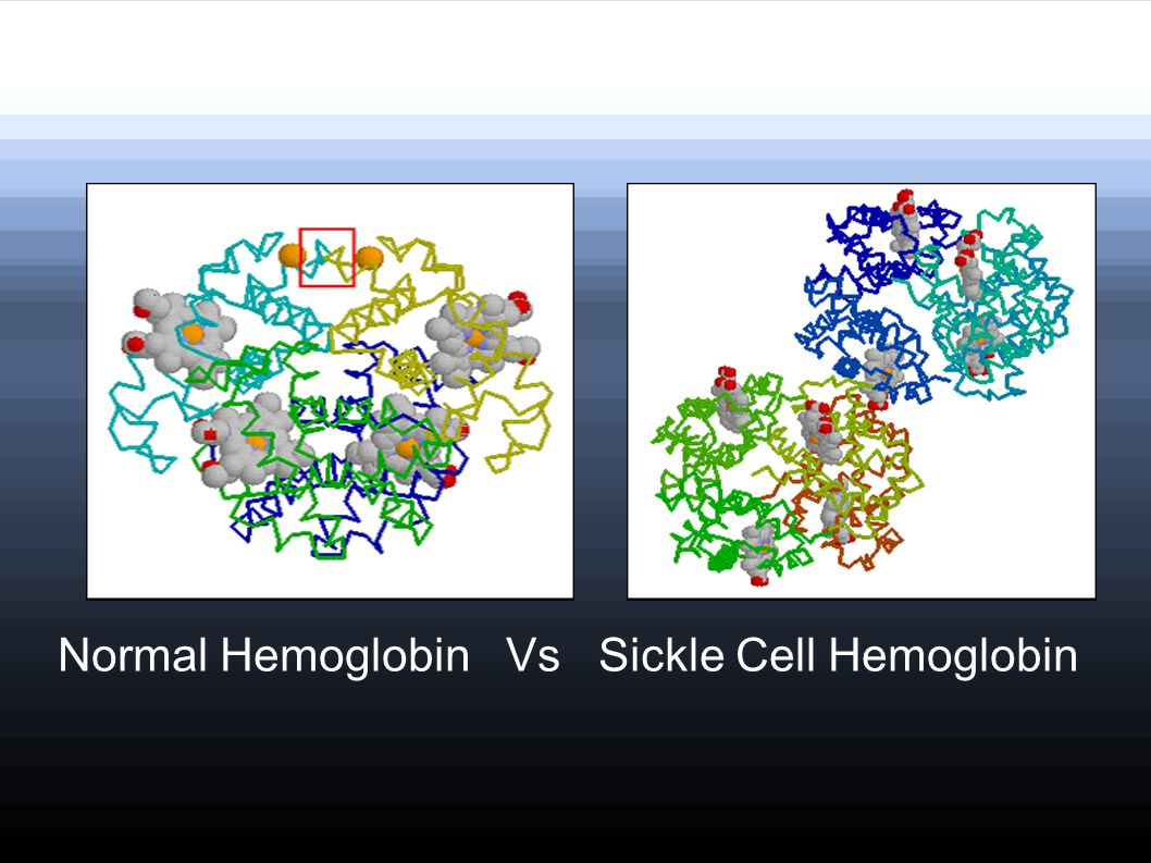 Normal Hemoglobin Vs Sickle Cell Hemoglobin