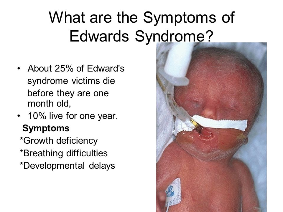 What are the Symptoms of Edwards Syndrome