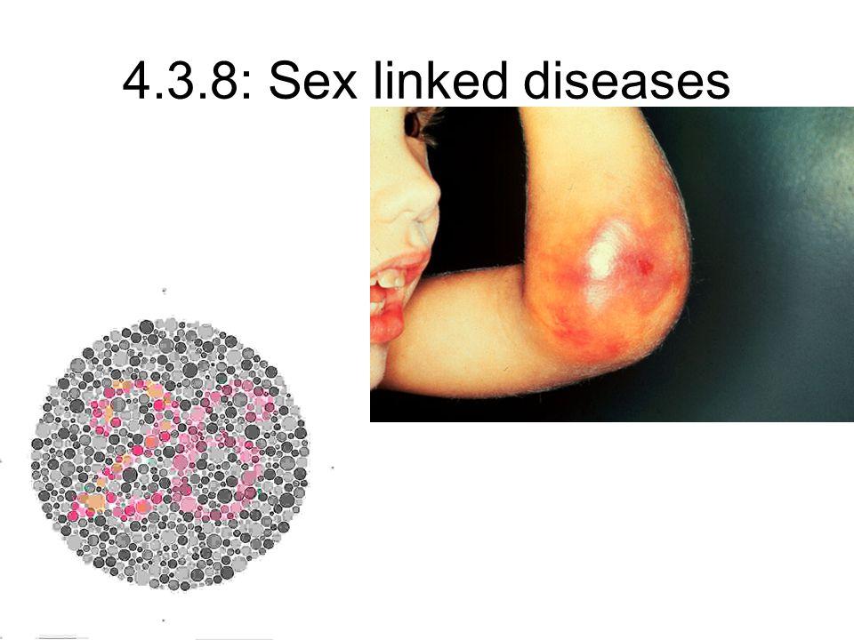 4.3.8: Sex linked diseases