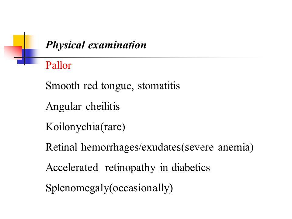 Physical examination Pallor. Smooth red tongue, stomatitis. Angular cheilitis. Koilonychia(rare)