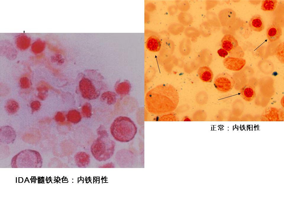 正常:内铁阳性 IDA骨髓铁染色:内铁阴性