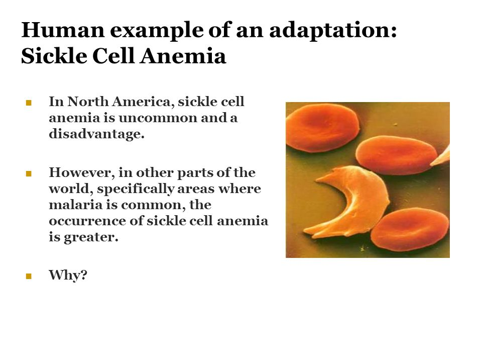 Human example of an adaptation: Sickle Cell Anemia