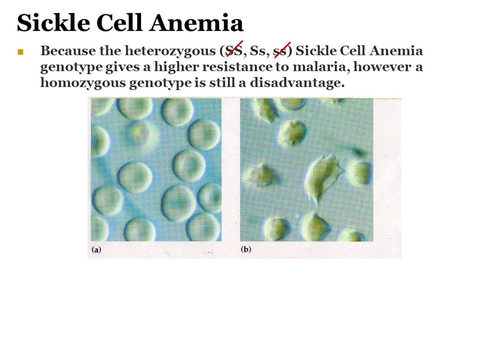 an analysis of sickle cell anemia Enzymatic amplification of beta-globin genomic sequences and restriction site analysis for diagnosis of sickle cell anemia.