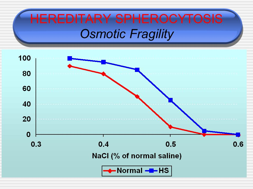 HEREDITARY SPHEROCYTOSIS Osmotic Fragility