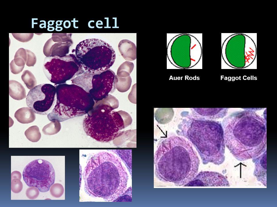 Faggot cell Auer Rods Faggot Cells