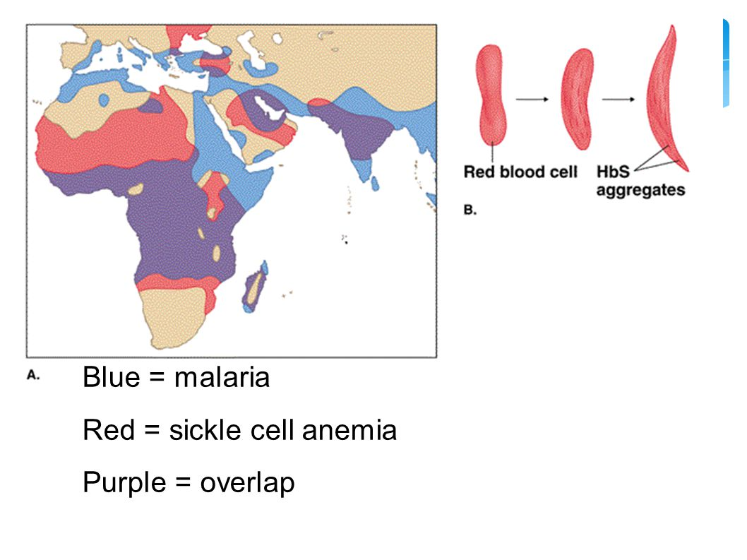 Blue = malaria Red = sickle cell anemia Purple = overlap