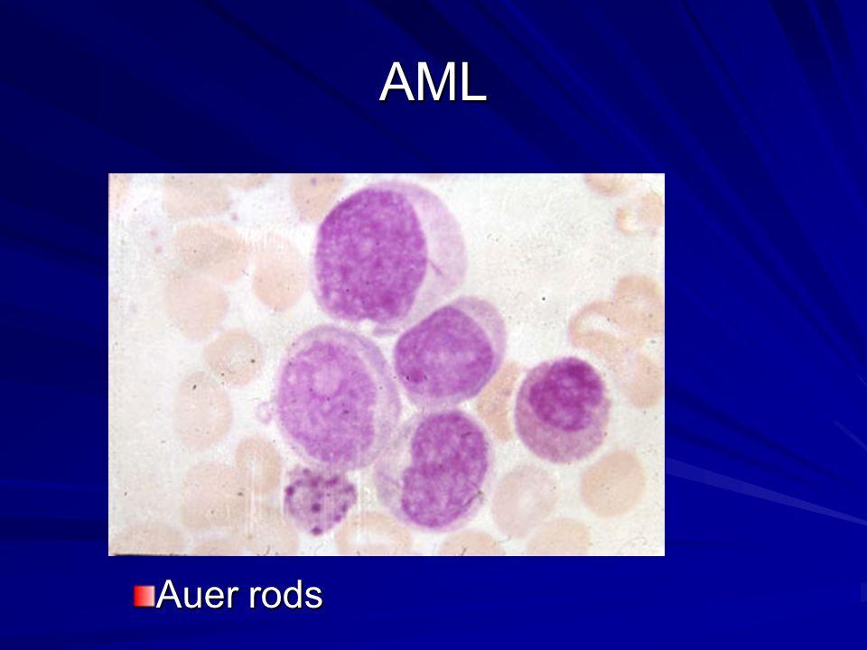 AML Auer rods
