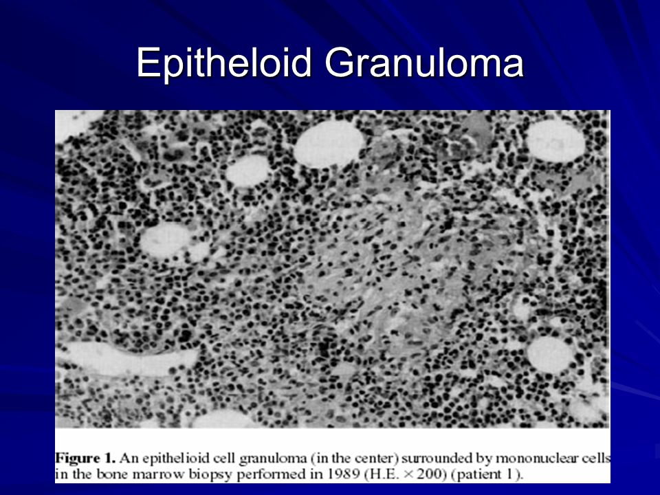 Epitheloid Granuloma Will mention that Bone marrow granulomas seem to be associated with cytopenias in patients with Amiodarone.