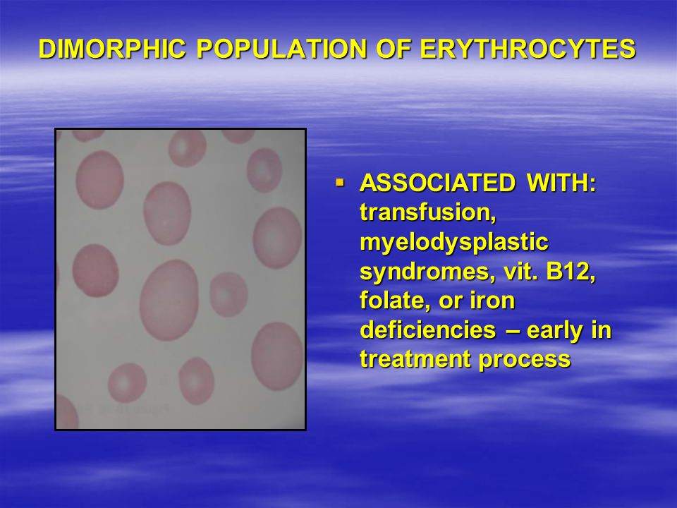 DIMORPHIC POPULATION OF ERYTHROCYTES
