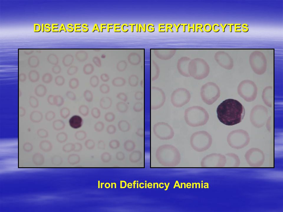 DISEASES AFFECTING ERYTHROCYTES