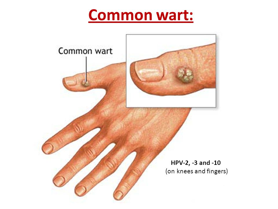 Common wart: HPV-2, -3 and -10 (on knees and fingers)