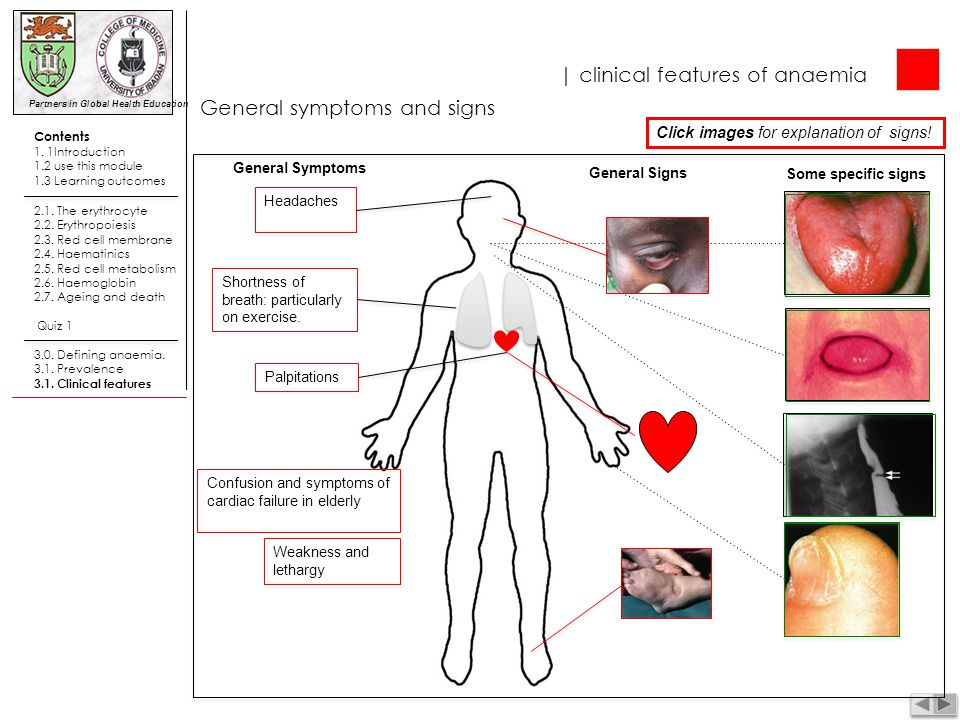 | clinical features of anaemia