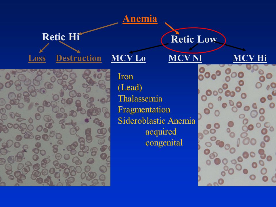 Anemia Retic Hi Retic Low Loss Destruction MCV Lo MCV Nl MCV Hi Iron