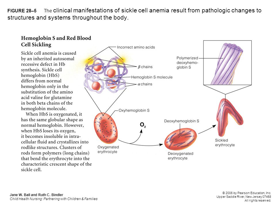 FIGURE 28–5 The clinical manifestations of sickle cell anemia result from pathologic changes to structures and systems throughout the body.