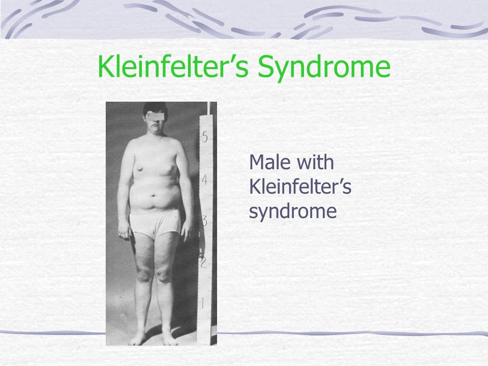 Kleinfelter's Syndrome