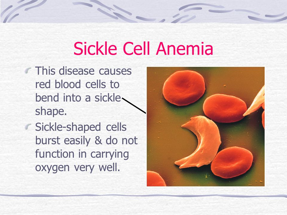 Sickle Cell Anemia This disease causes red blood cells to bend into a sickle shape.