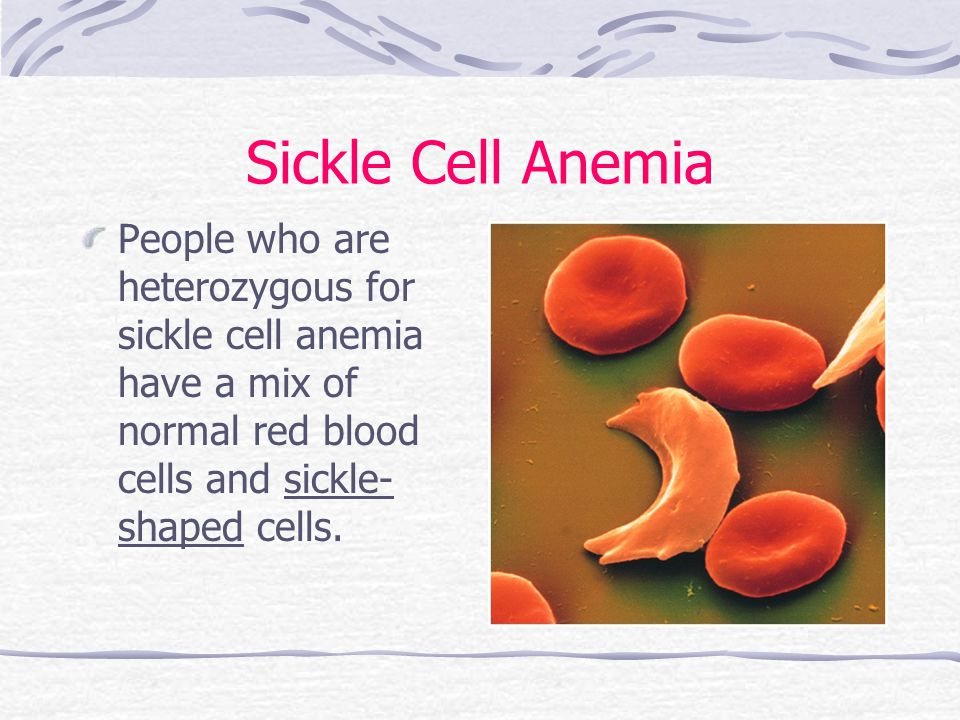 Sickle Cell Anemia People who are heterozygous for sickle cell anemia have a mix of normal red blood cells and sickle-shaped cells.