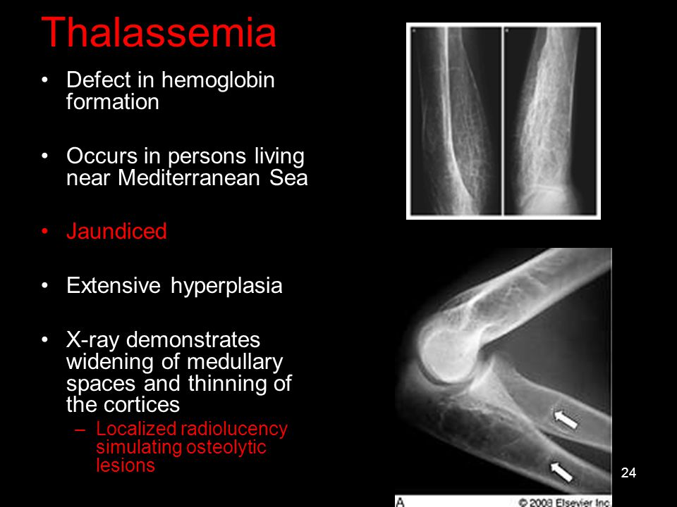 Thalassemia Defect in hemoglobin formation