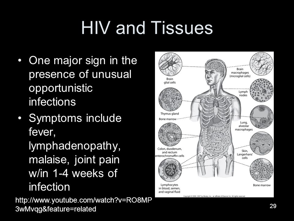 HIV and Tissues One major sign in the presence of unusual opportunistic infections.