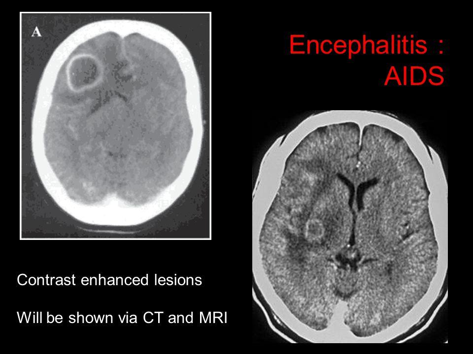Encephalitis : AIDS Contrast enhanced lesions