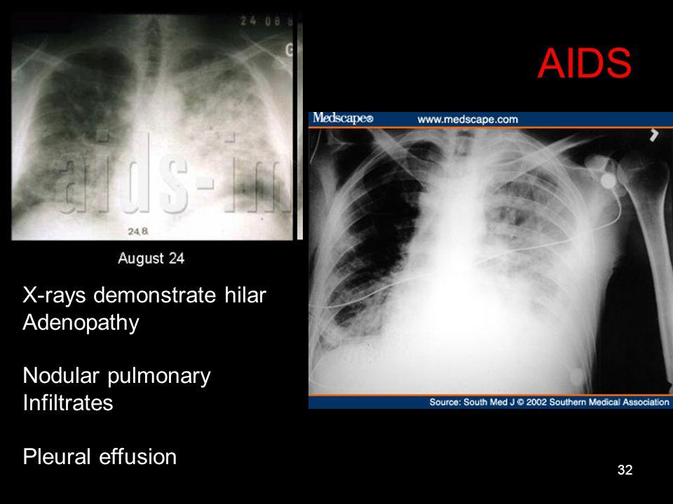 AIDS X-rays demonstrate hilar Adenopathy Nodular pulmonary Infiltrates