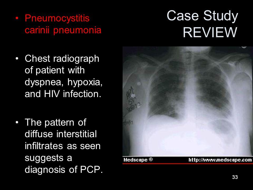 Case Study REVIEW Pneumocystitis carinii pneumonia