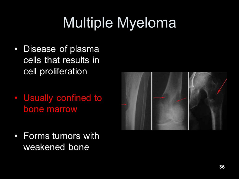 Multiple Myeloma Disease of plasma cells that results in cell proliferation. Usually confined to bone marrow.