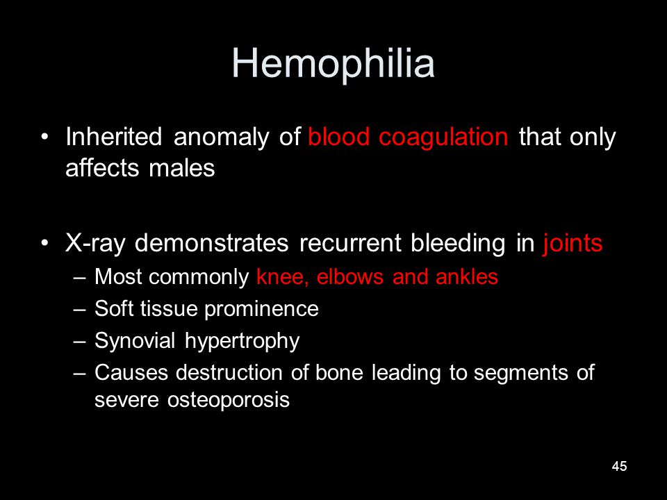Hemophilia Inherited anomaly of blood coagulation that only affects males. X-ray demonstrates recurrent bleeding in joints.
