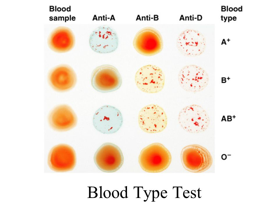 Blood Type Test Figure 19–7