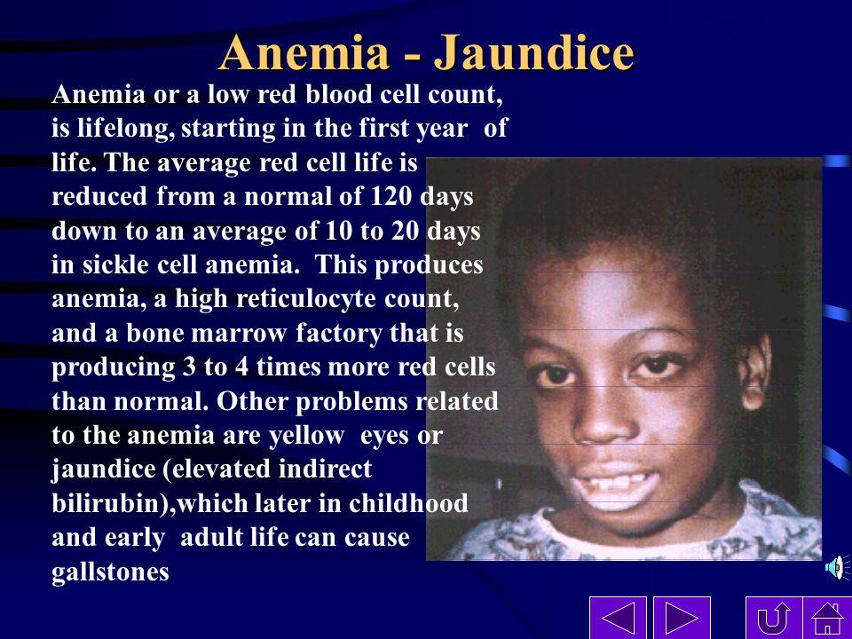 Anemia - Jaundice