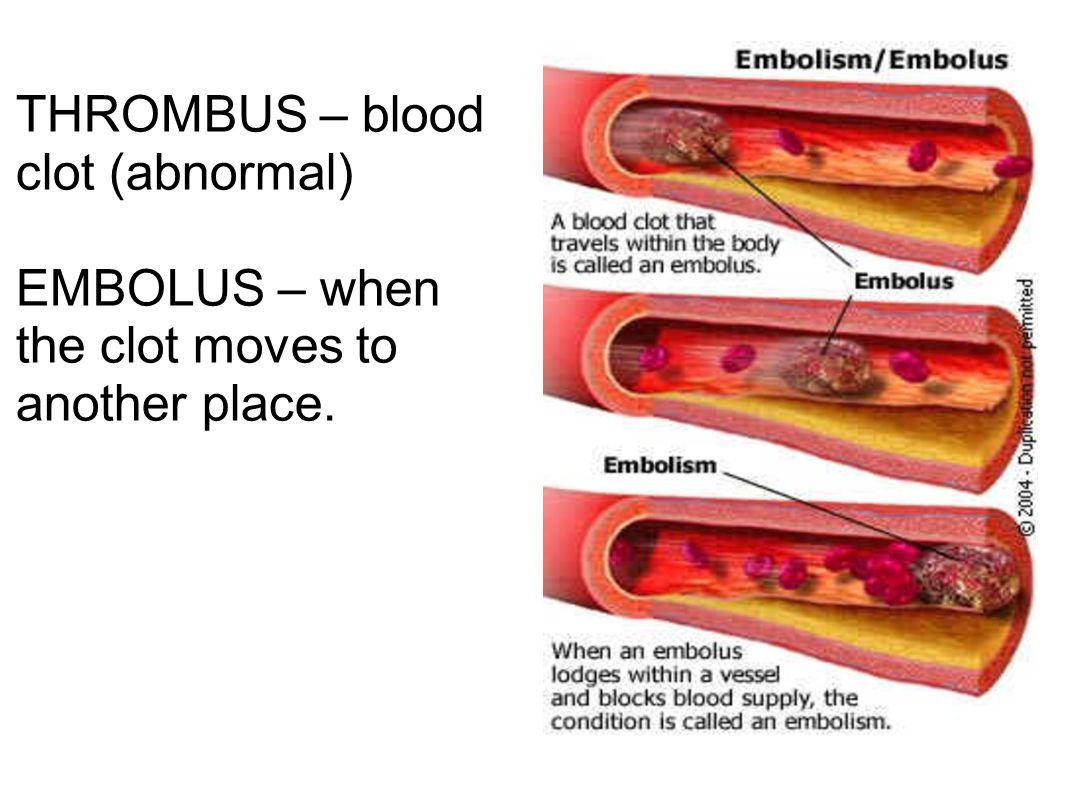 THROMBUS – blood clot (abnormal)