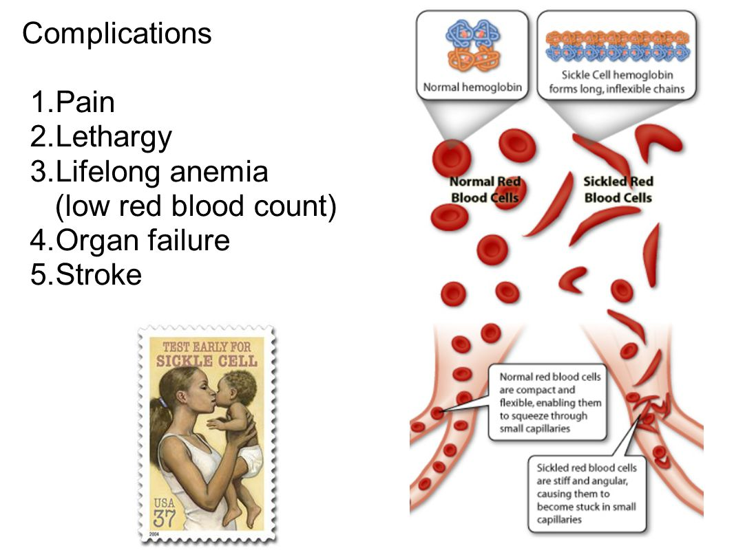 Complications Pain Lethargy Lifelong anemia (low red blood count) Organ failure Stroke
