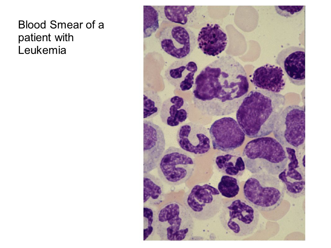 Blood Smear of a patient with Leukemia