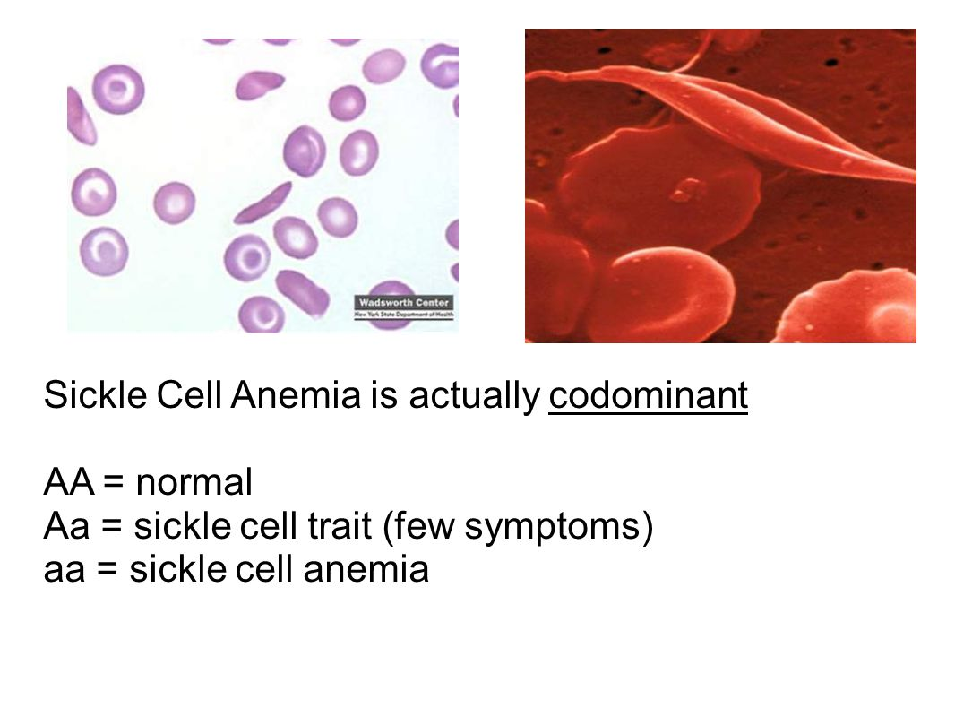 Sickle Cell Anemia is actually codominant