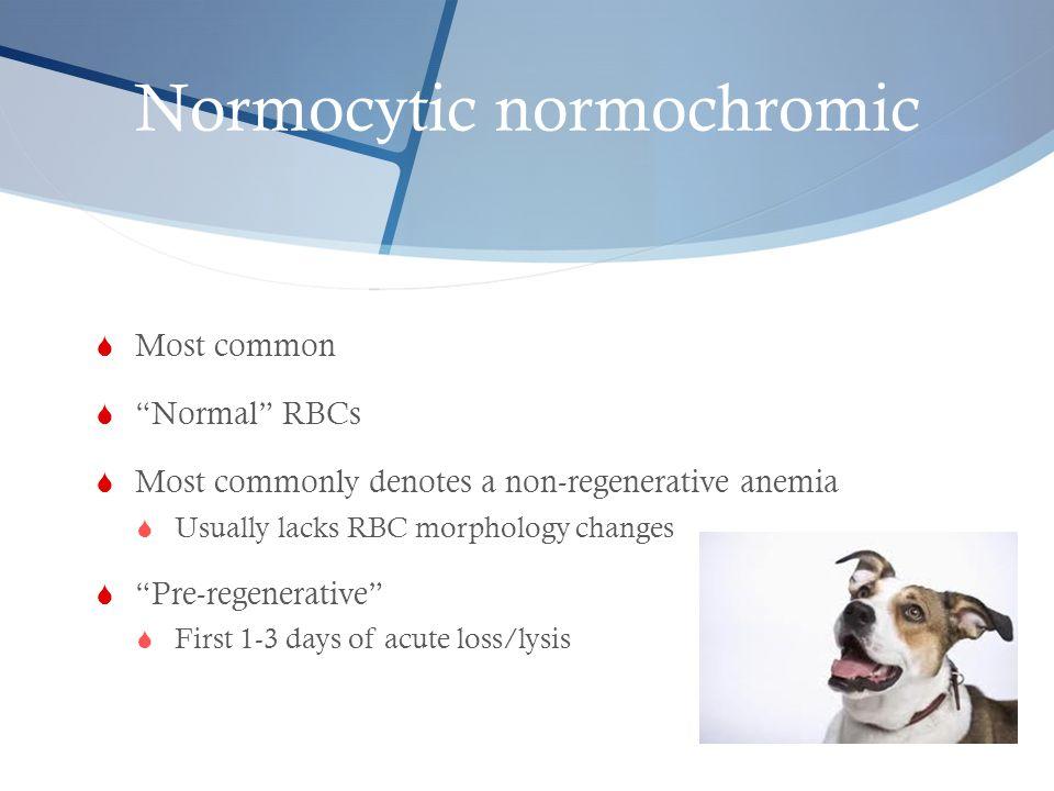 Normocytic normochromic
