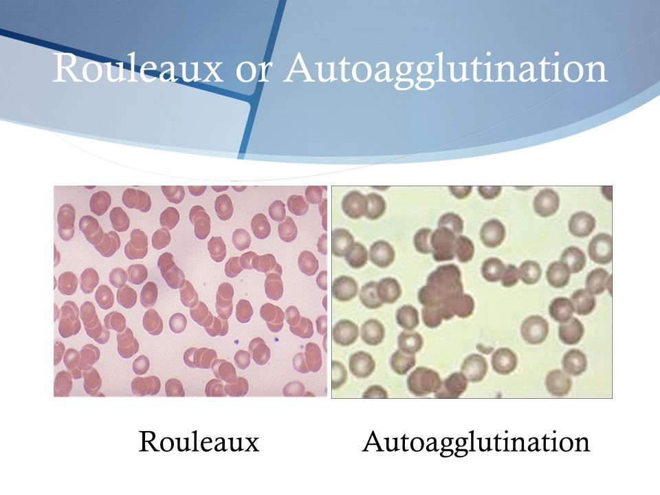 Rouleaux or Autoagglutination