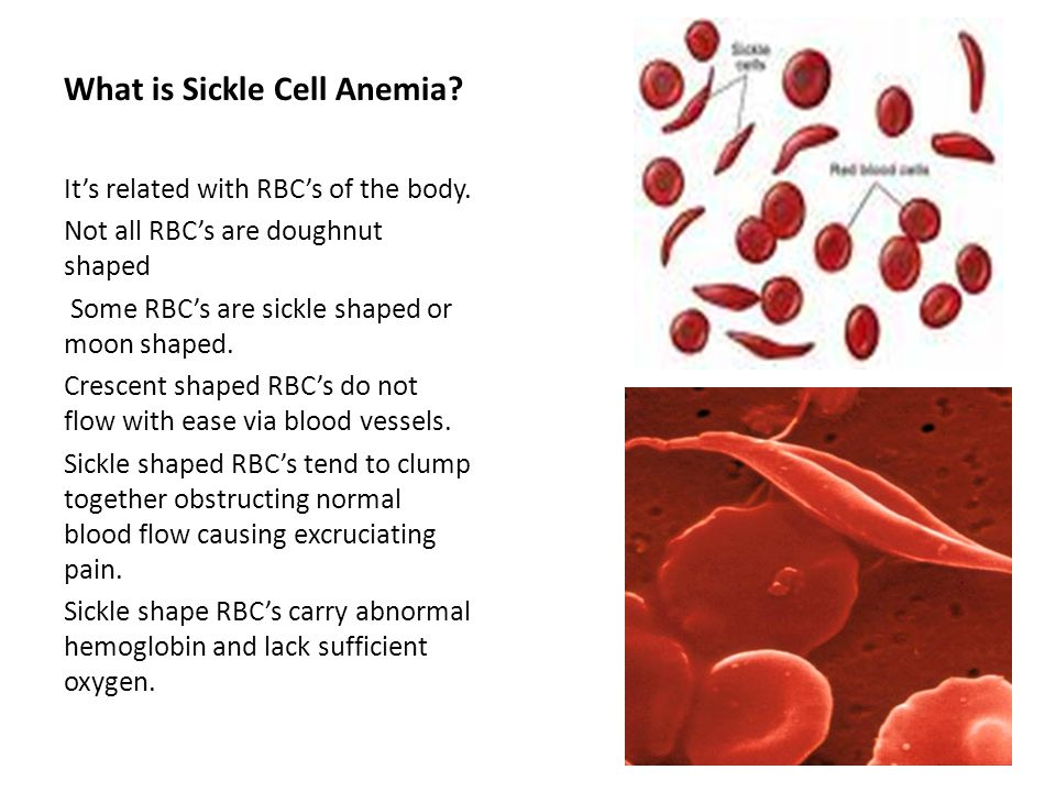 What is Sickle Cell Anemia