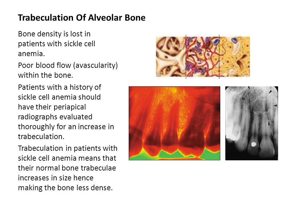 Trabeculation Of Alveolar Bone