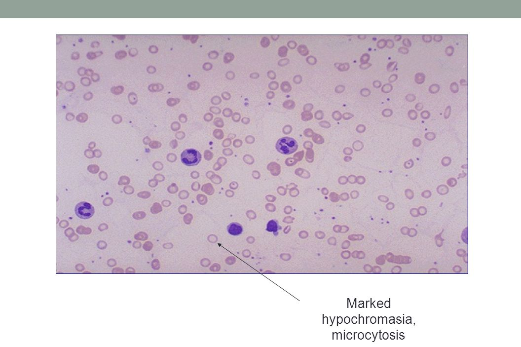Marked hypochromasia, microcytosis