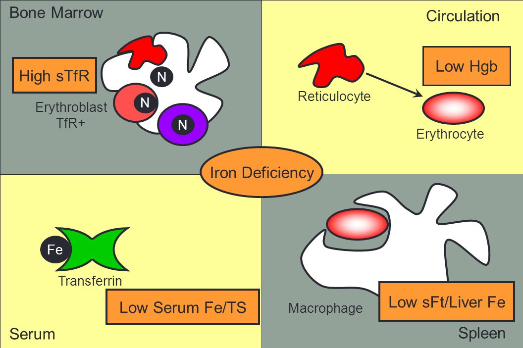 Bone Marrow Circulation Low Hgb High sTfR Iron Deficiency