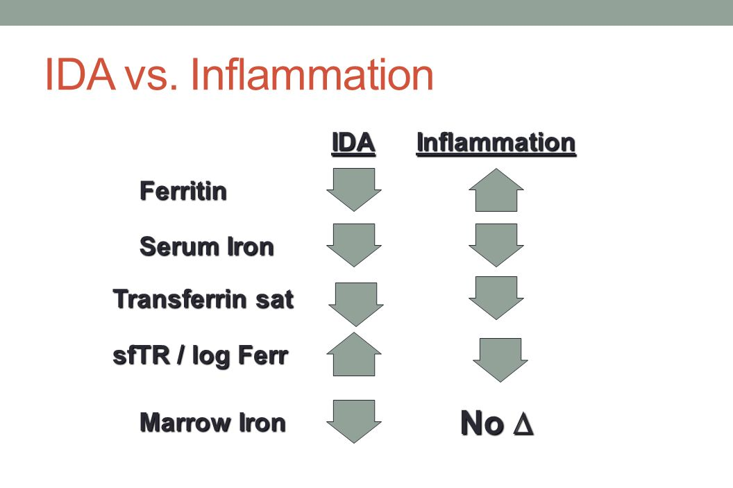 IDA vs. Inflammation No D Ferritin IDA Inflammation Serum Iron