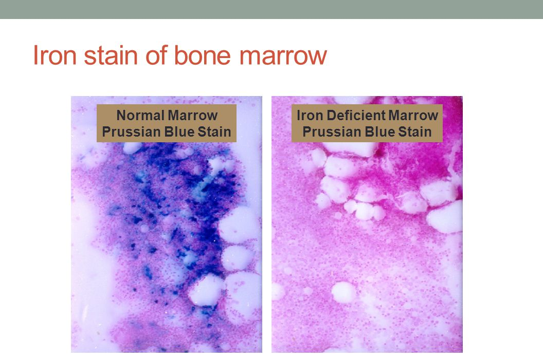 Iron stain of bone marrow