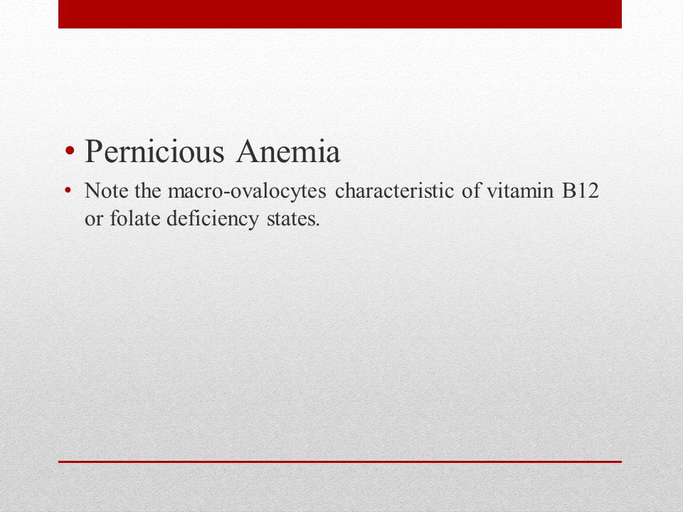Pernicious Anemia Note the macro-ovalocytes characteristic of vitamin B12 or folate deficiency states.
